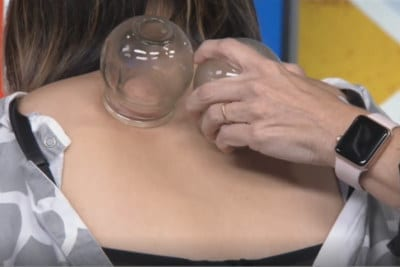 Cupping Ancient Treatment